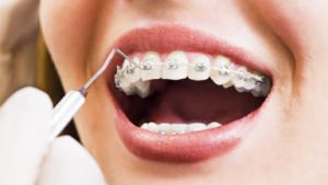 Ortodontia Fixa e Removível