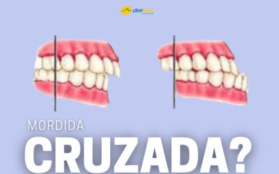 Mordida Cruzada